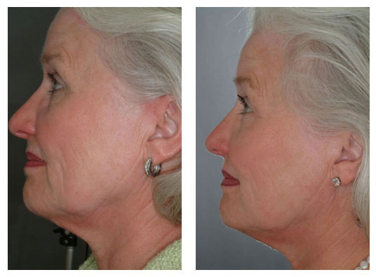 Laser Skin Tightening Vitality Laser Spa