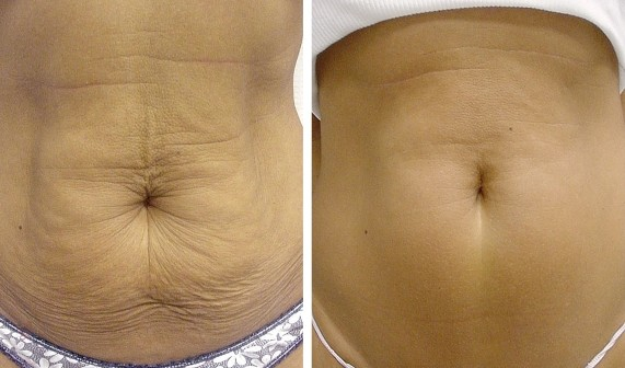 cellulite-belly-vitality-laser-spa