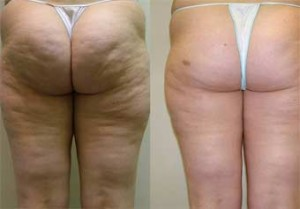 butt-cellulite-vitality-laser-spa