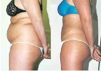 cellulite-body-vitality-lase-spa