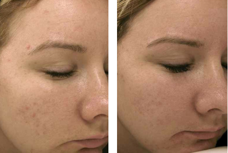 before-after-scar-face-vitality-spa