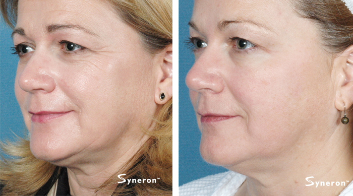 laser-before-after-2 syneron